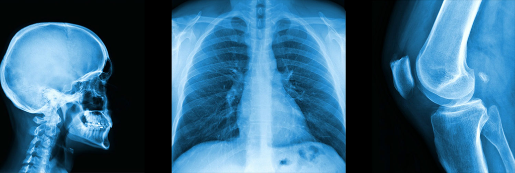 radiographie humaine